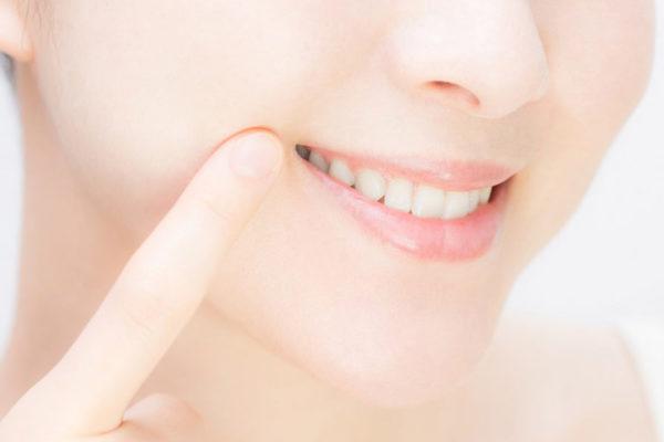 インビザラインを受けるなら、古淵のみんなの歯医者へ