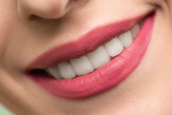 相模原古淵の歯科医が、ホワイトニングの種類やできないケースなどを解説