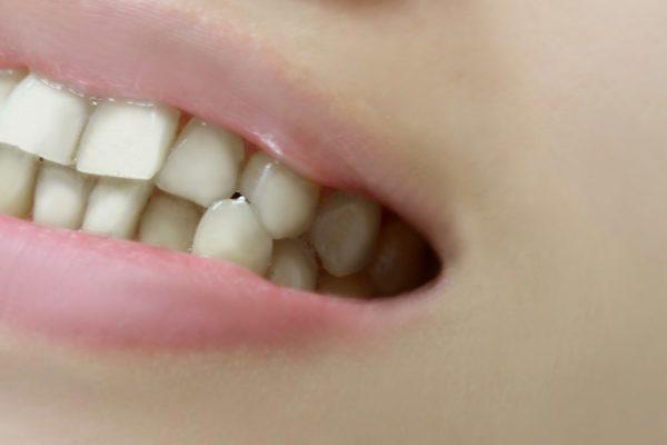相模原の矯正歯科、みんなの歯医者